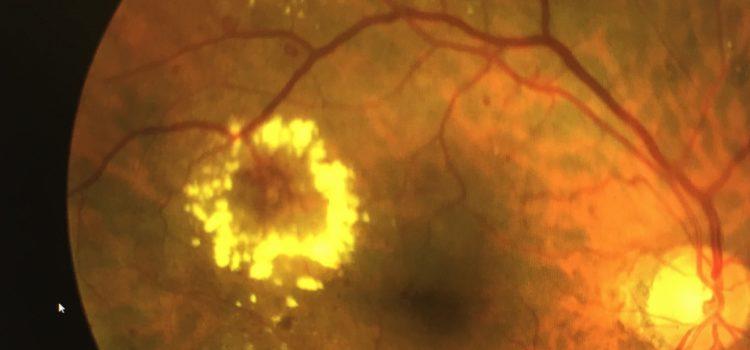 Mantiene IMSS Sonora recomendaciones para evitar retinopatía diabética