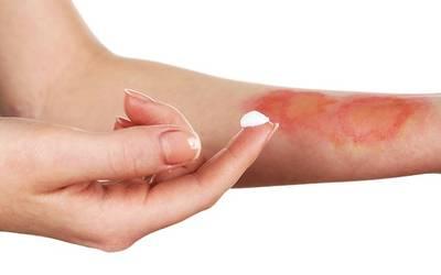 Recomienda IMSS Sonora evitar remedios caseros contra quemaduras causadas por el sol
