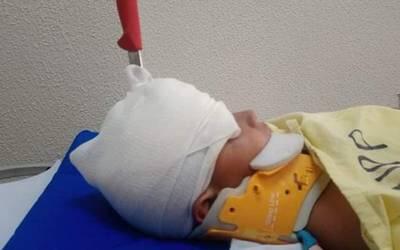 Le clavan cuchillo en la cabeza a un infante de 5 años, en Puerto Peñasco, Sonora